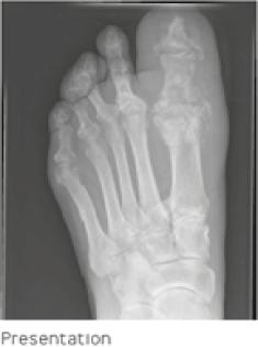 revisión cpt diabetes amputada del dedo del pie